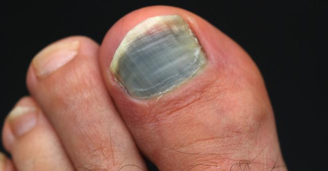 Corsa e unghie nere: le 5 precauzioni del runner