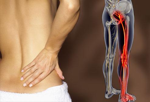 Sindrome del piriforme, l'infiammazione, i suoi sintomi e gli esercizi giusti