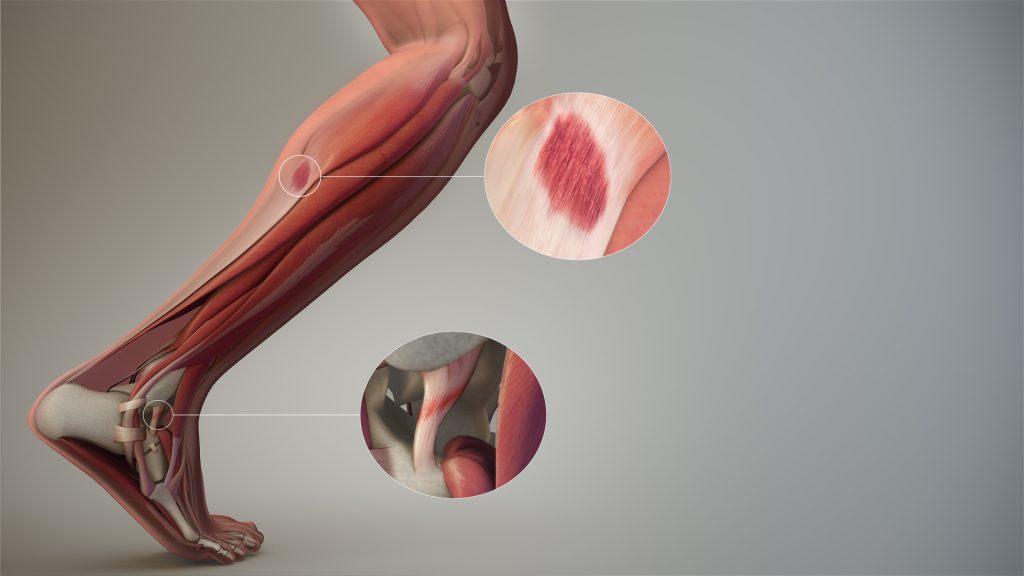 Contrattura, stiramento e strappo: riconoscere i tre infortuni al polpaccio