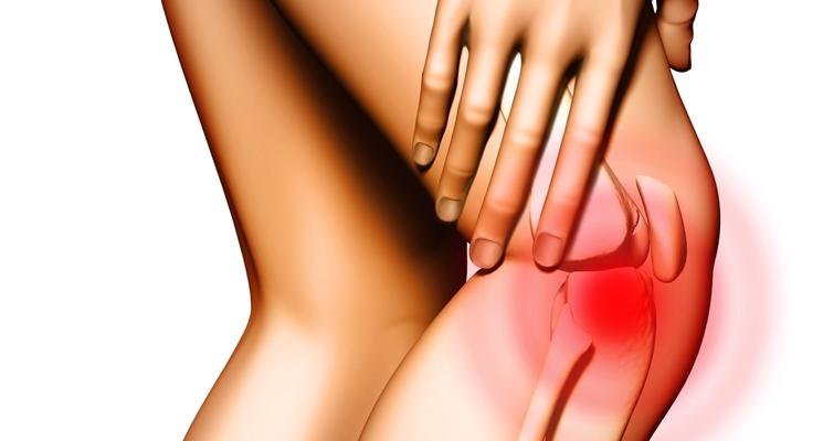 Tendinite del popliteo: ecco cos'è quel dolore ai tendini posteriori del ginocchio